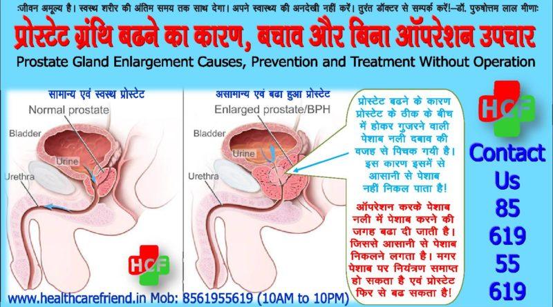 प्रोस्टेट ग्रंथि बढने का कारण, बचाव और बिना ऑपरेशन उपचारProstate Gland Enlargement Causes, Prevention and Treatment Without Operation