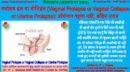 गर्भाशय भ्रंश या योनिभ्रंश (Vaginal Prolapse/Collapse or Uterine Prolapse): ऑपरेशन पहला नहीं, अंतिम उपाय